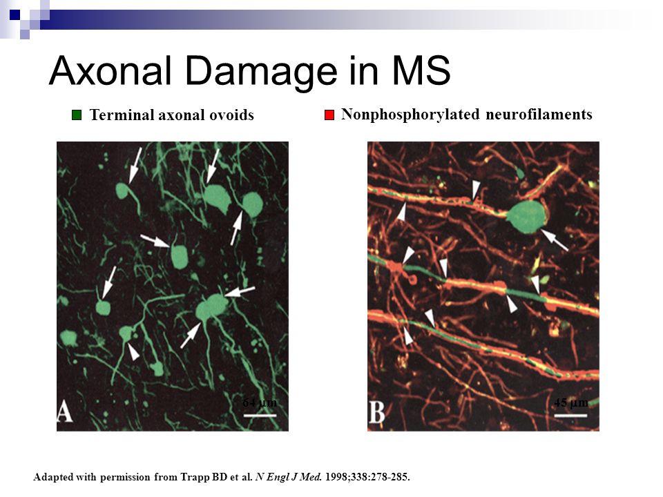 Axonal Damage in MS Terminal axonal ovoids