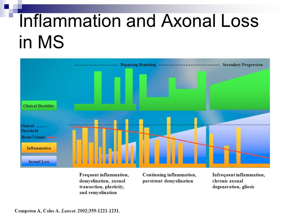 Inflammation and Axonal Loss in MS