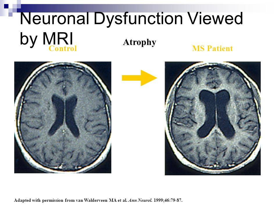 Neuronal Dysfunction Viewed by MRI