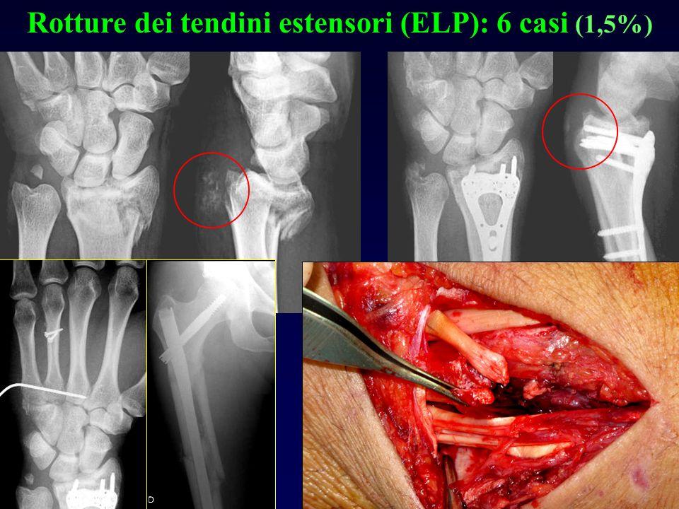 Rotture dei tendini estensori (ELP): 6 casi (1,5%)