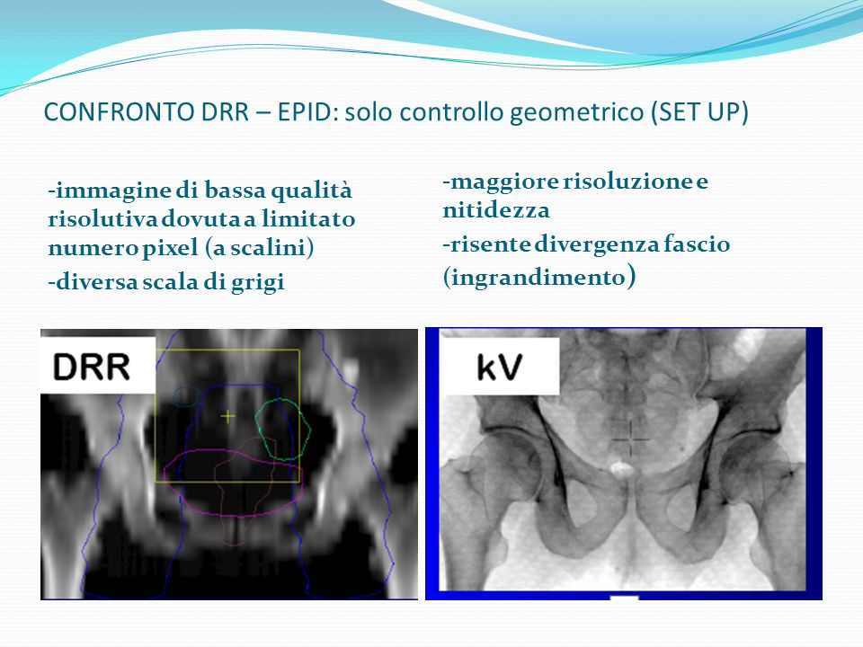 CONFRONTO DRR – EPID: solo controllo geometrico (SET UP)
