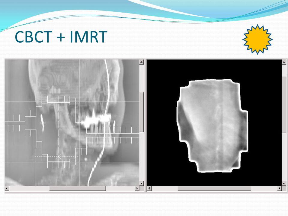 CBCT + IMRT