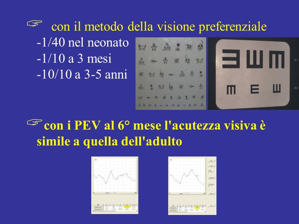 con il metodo della visione preferenziale -1/40 nel neonato -1/10 a 3 mesi -10/10 a 3-5 anni