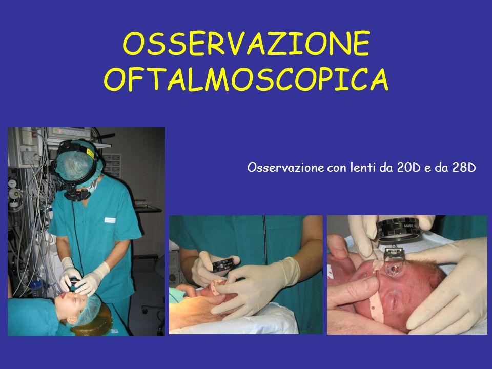 OSSERVAZIONE OFTALMOSCOPICA