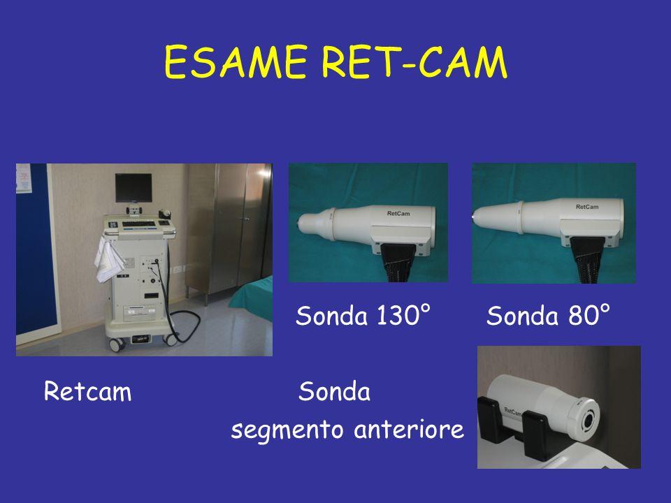 ESAME RET-CAM Sonda 130° Sonda 80° Retcam Sonda segmento anteriore