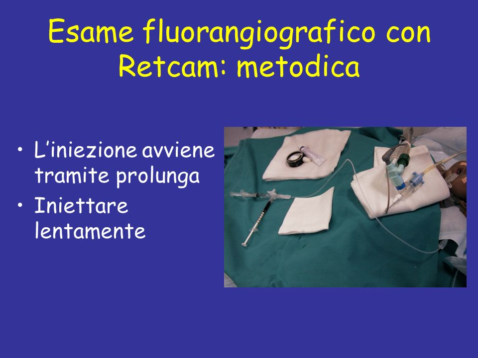 Esame fluorangiografico con Retcam: metodica
