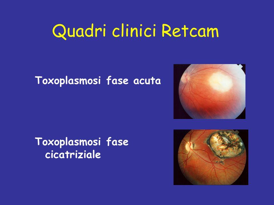Quadri clinici Retcam Toxoplasmosi fase acuta