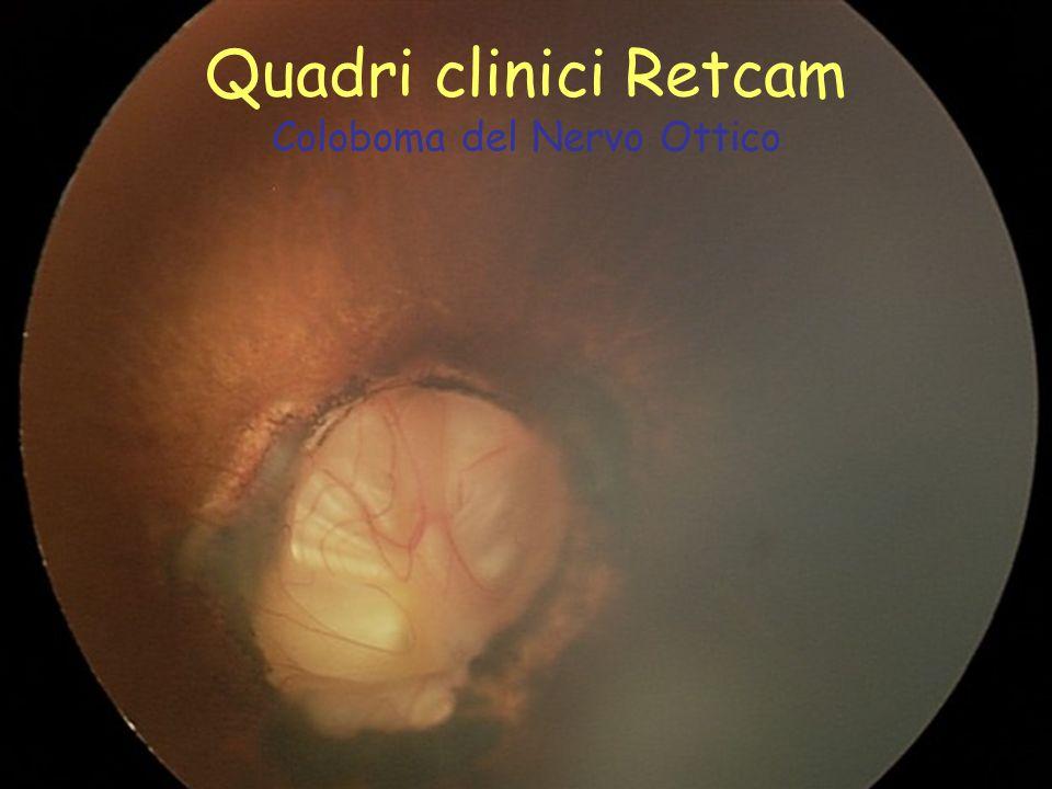 Quadri clinici Retcam Coloboma del Nervo Ottico
