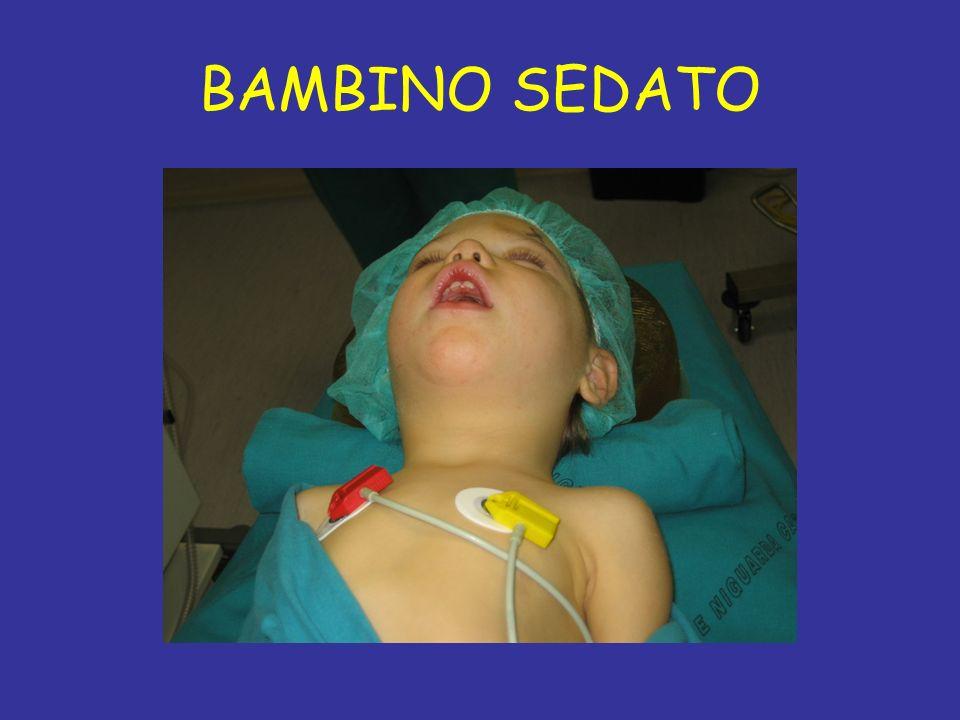 BAMBINO SEDATO