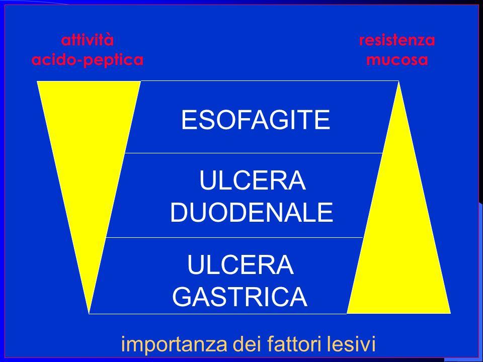 ESOFAGITE ULCERA DUODENALE ULCERA GASTRICA