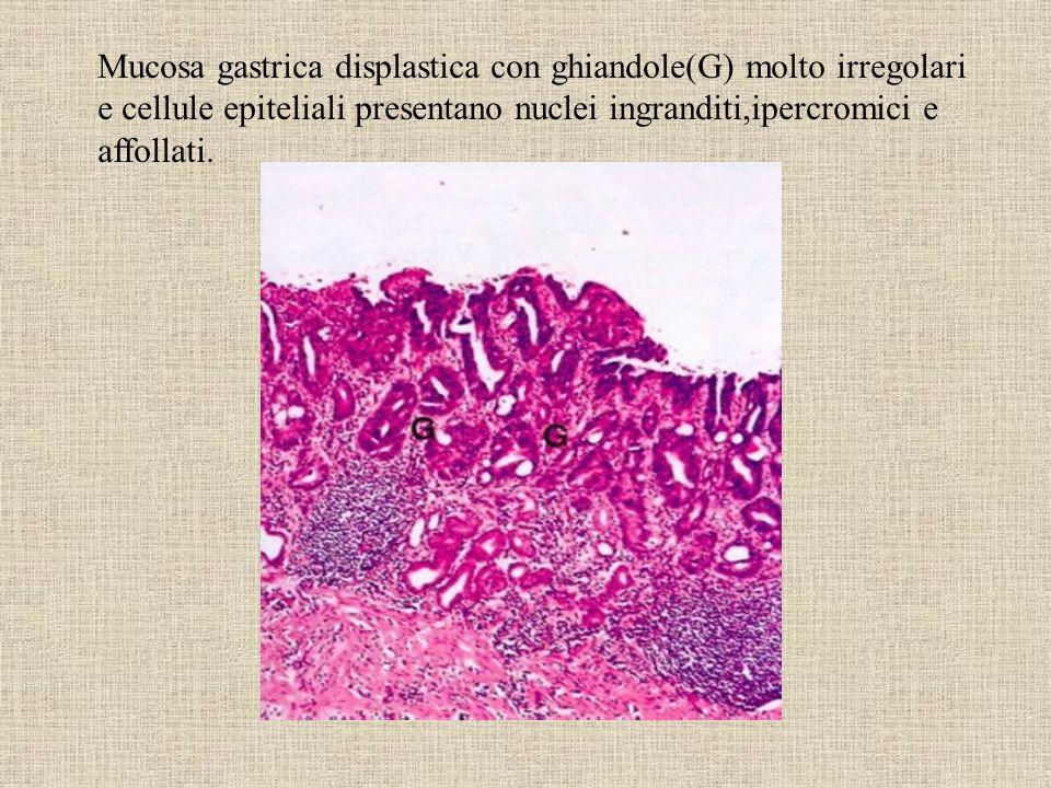 Mucosa gastrica displastica con ghiandole(G) molto irregolari