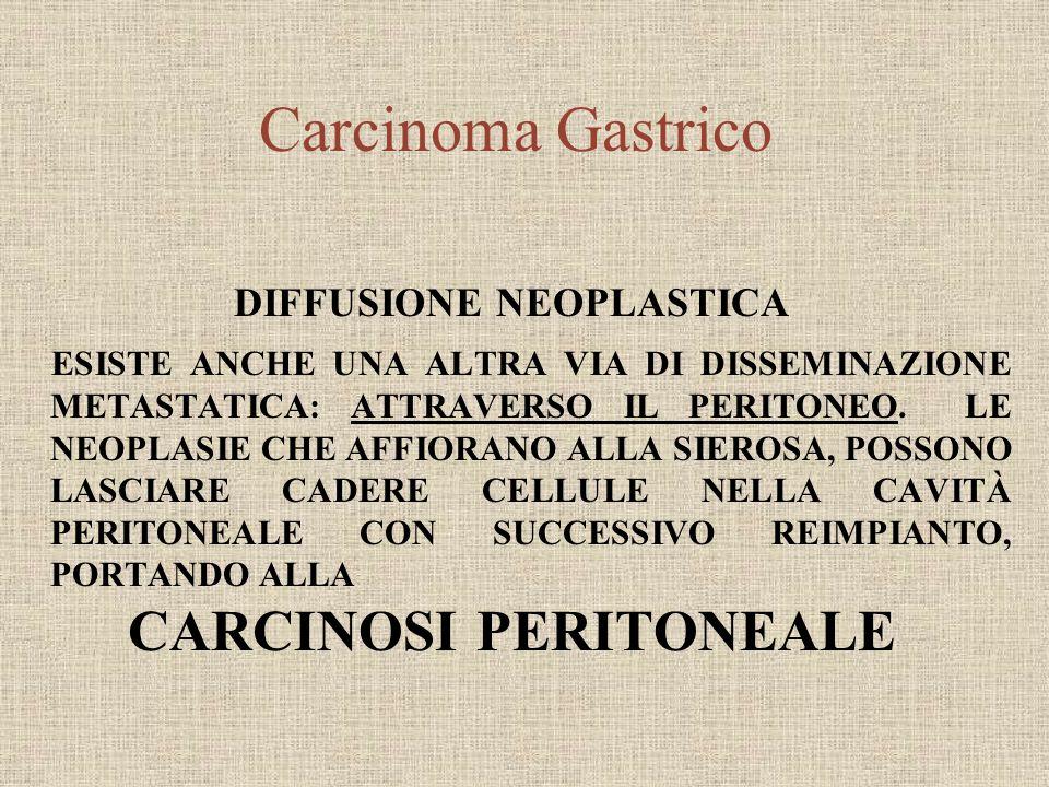 DIFFUSIONE NEOPLASTICA CARCINOSI PERITONEALE