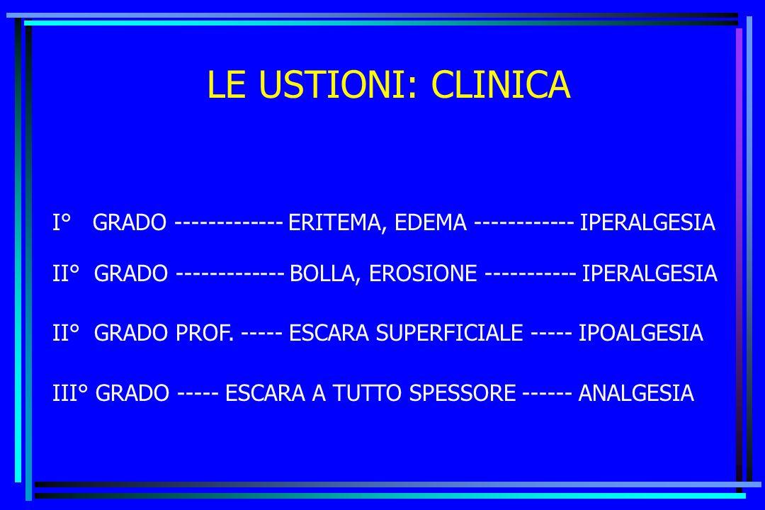 LE USTIONI: CLINICA I° GRADO ------------- ERITEMA, EDEMA ------------ IPERALGESIA.