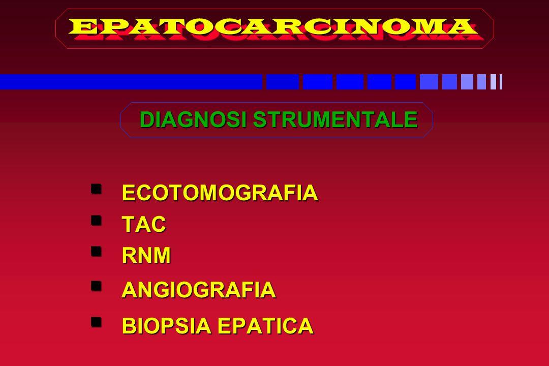 EPATOCARCINOMA DIAGNOSI STRUMENTALE ECOTOMOGRAFIA TAC RNM ANGIOGRAFIA BIOPSIA EPATICA