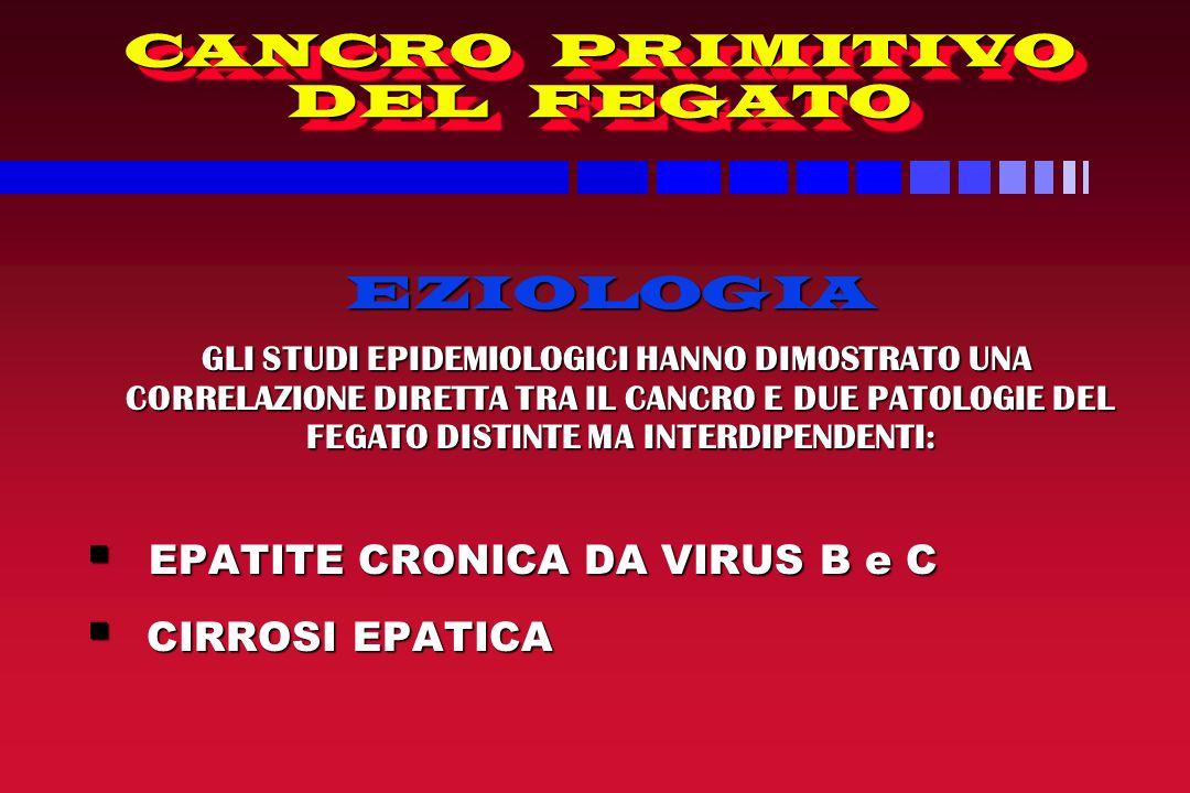 CANCRO PRIMITIVO DEL FEGATO