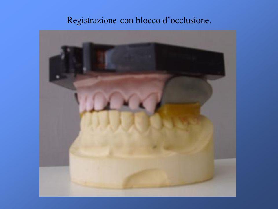Registrazione con blocco d'occlusione.
