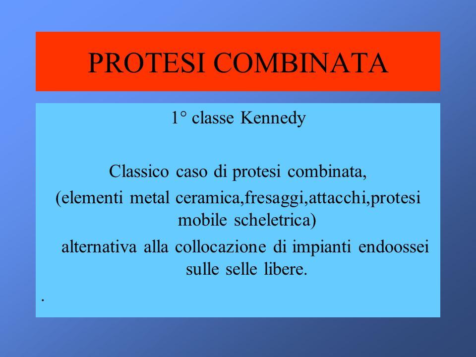 PROTESI COMBINATA 1° classe Kennedy