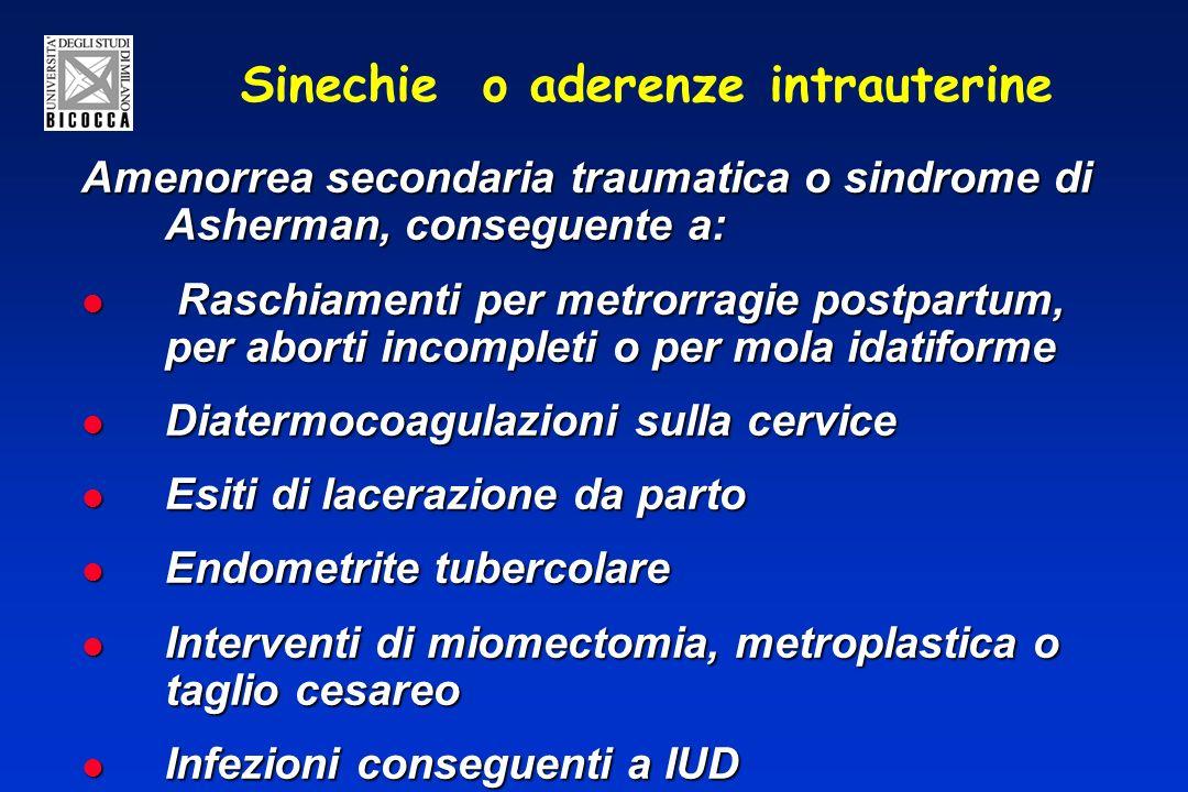 Sinechie o aderenze intrauterine