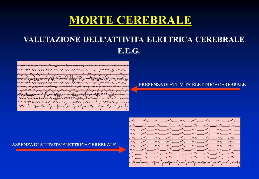 MORTE CEREBRALE VALUTAZIONE DELL'ATTIVITA ELETTRICA CEREBRALE E.E.G.