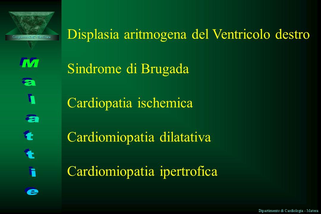 Displasia aritmogena del Ventricolo destro Sindrome di Brugada