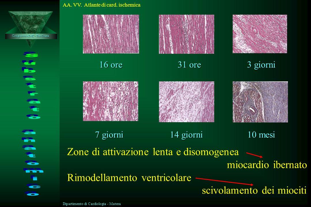 Substrato anatomico Zone di attivazione lenta e disomogenea