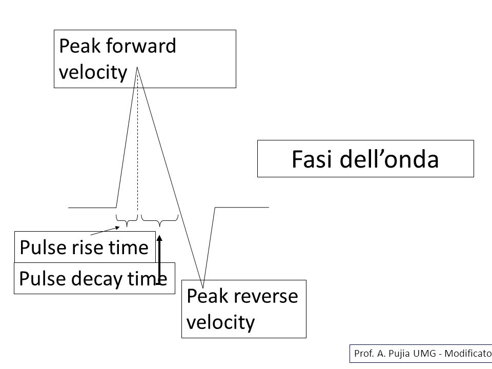 Fasi dell'onda Peak forward velocity Pulse rise time Pulse decay time