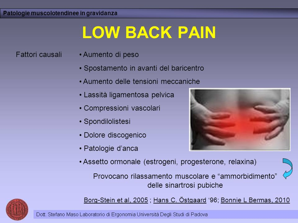 LOW BACK PAIN Fattori causali Aumento di peso