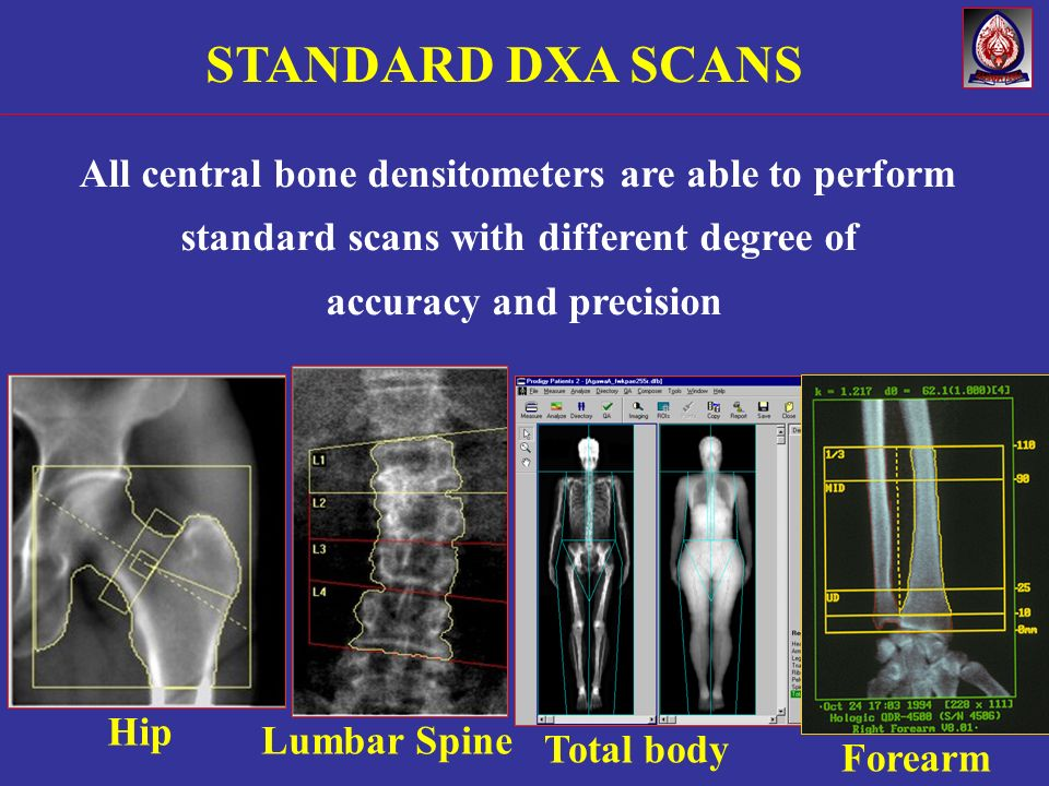 STANDARD DXA SCANS All central bone densitometers are able to perform