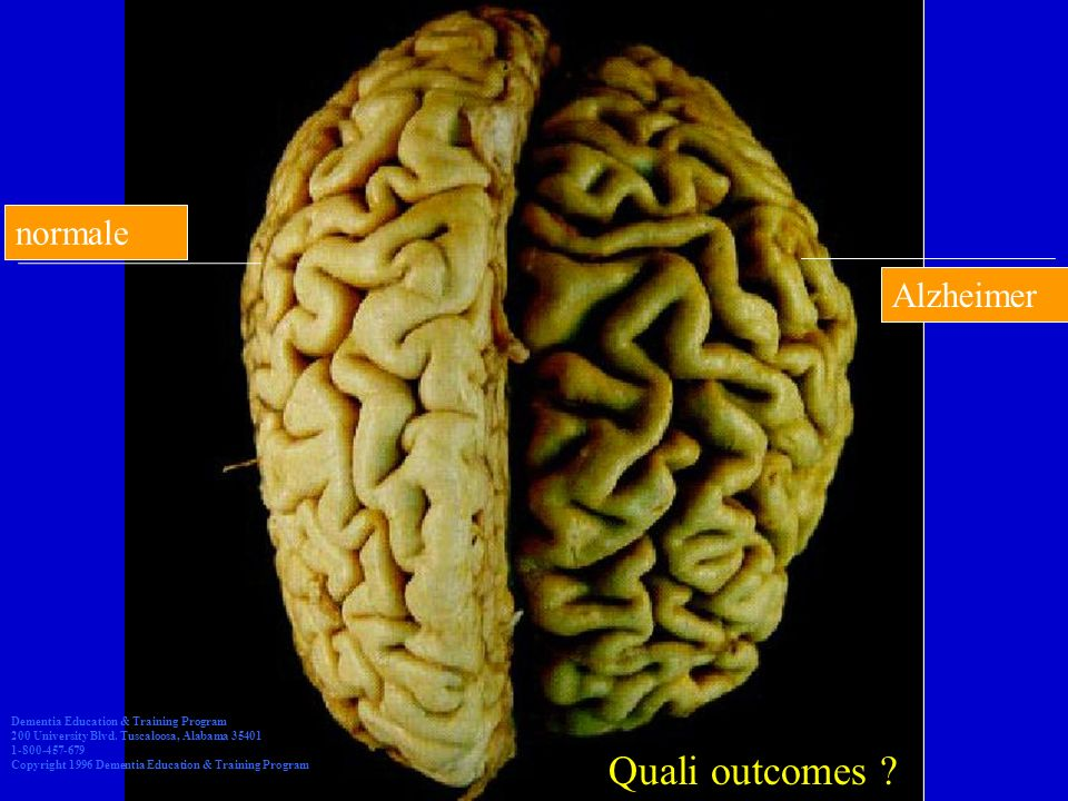 Quali outcomes normale Alzheimer