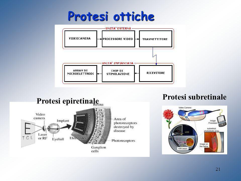 Protesi ottiche Protesi subretinale Protesi epiretinale