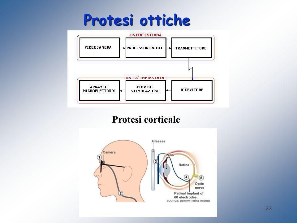 Protesi ottiche Protesi corticale