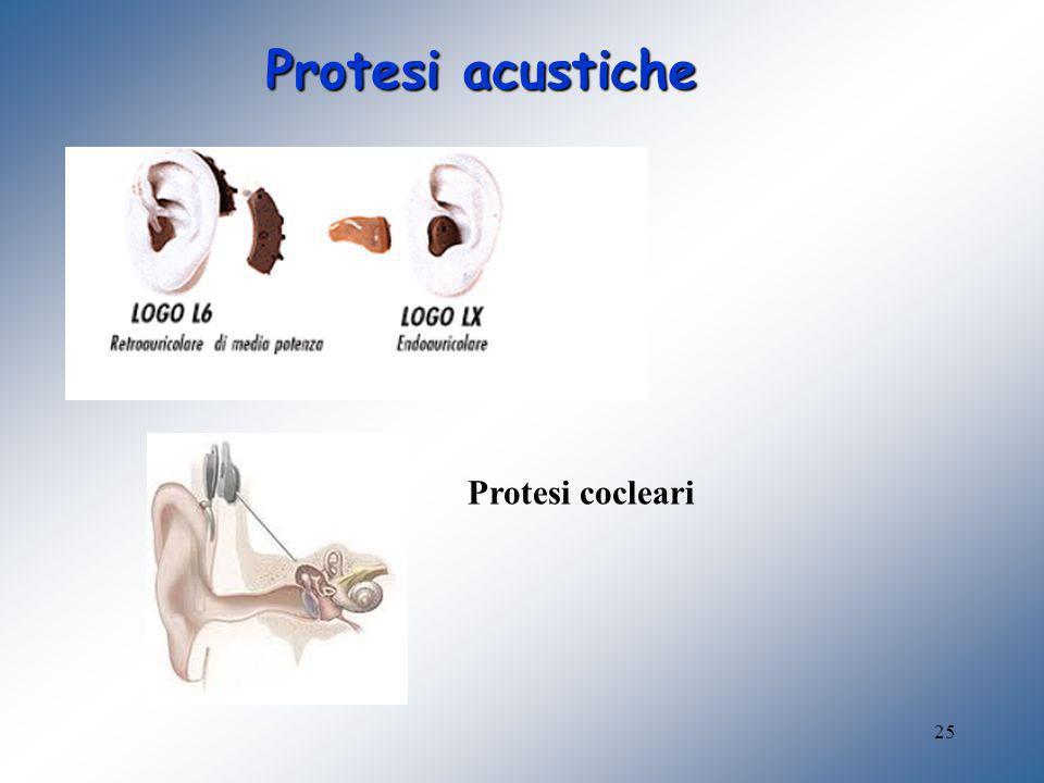 Protesi acustiche Protesi cocleari
