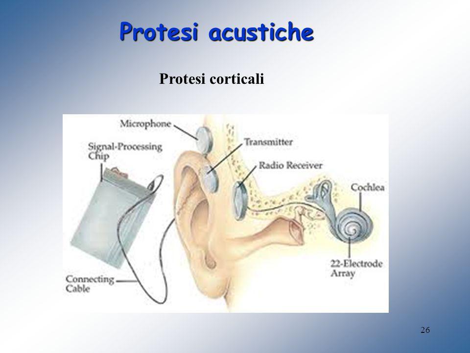 Protesi acustiche Protesi corticali