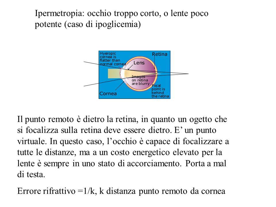 Ipermetropia: occhio troppo corto, o lente poco potente (caso di ipoglicemia)