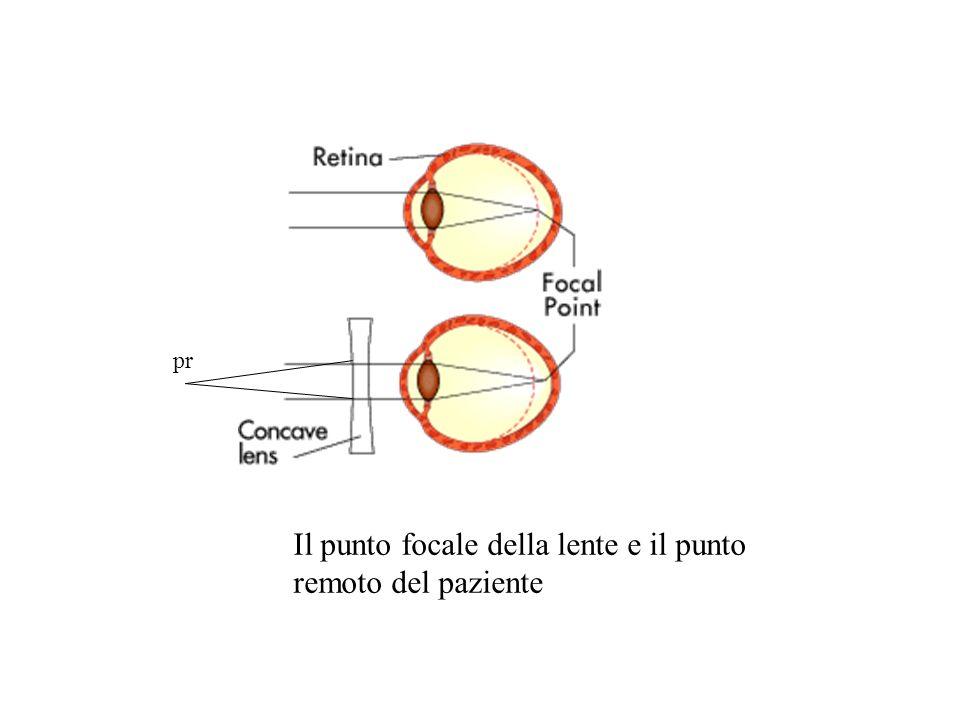 Il punto focale della lente e il punto remoto del paziente
