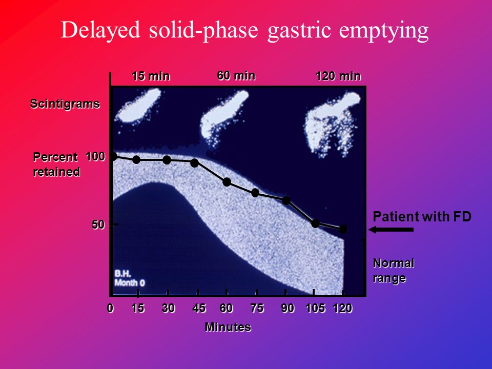 Delayed solid-phase gastric emptying