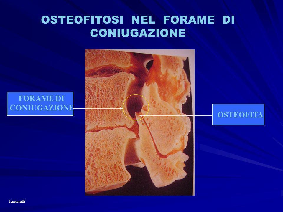 OSTEOFITOSI NEL FORAME DI CONIUGAZIONE