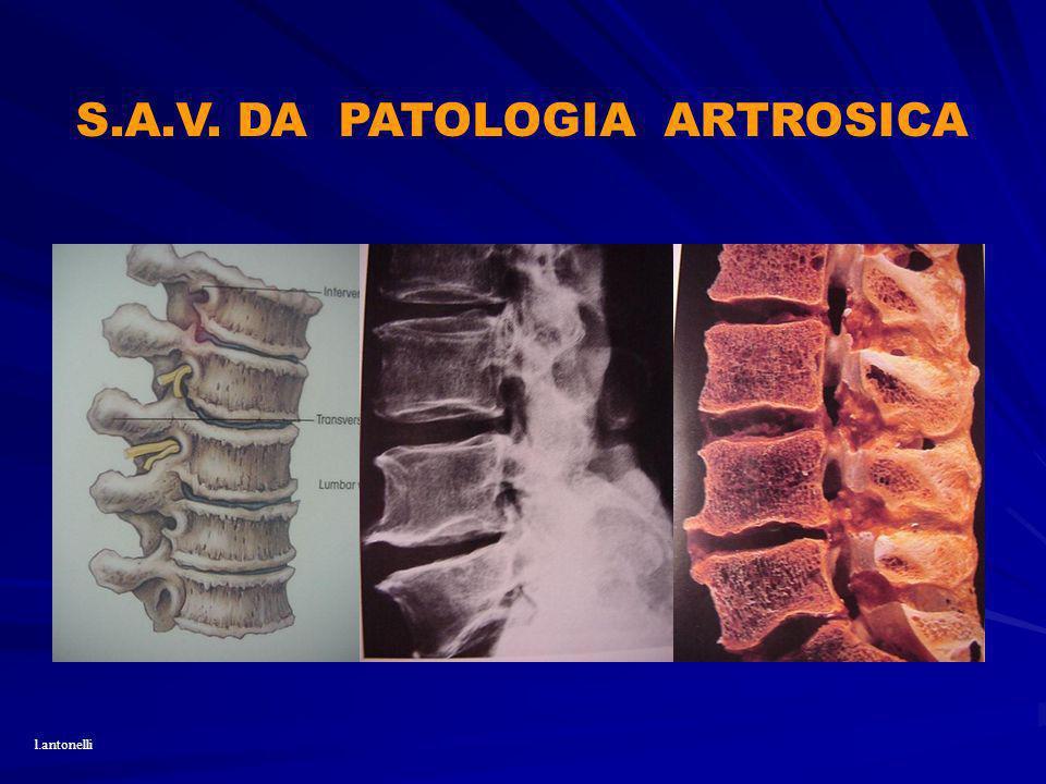 S.A.V. DA PATOLOGIA ARTROSICA