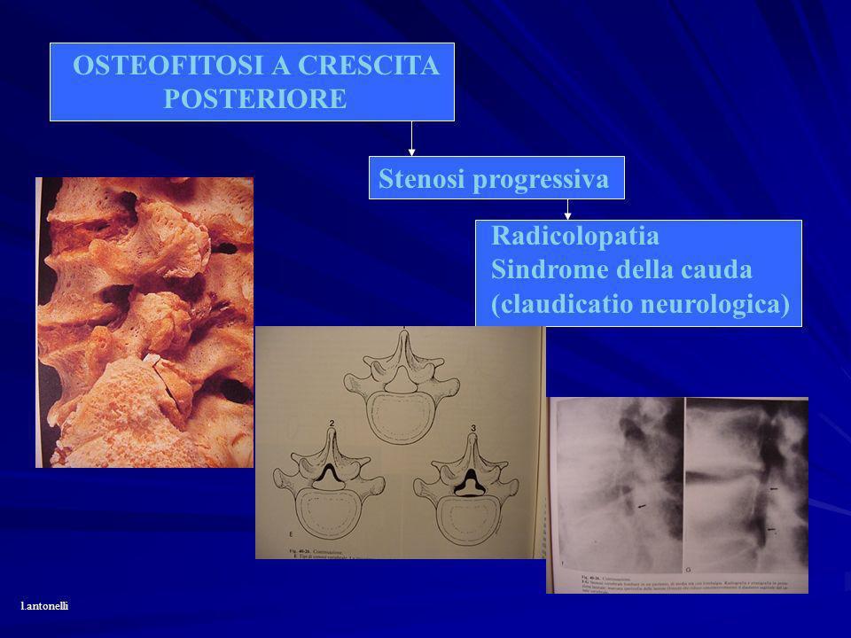 OSTEOFITOSI A CRESCITA POSTERIORE