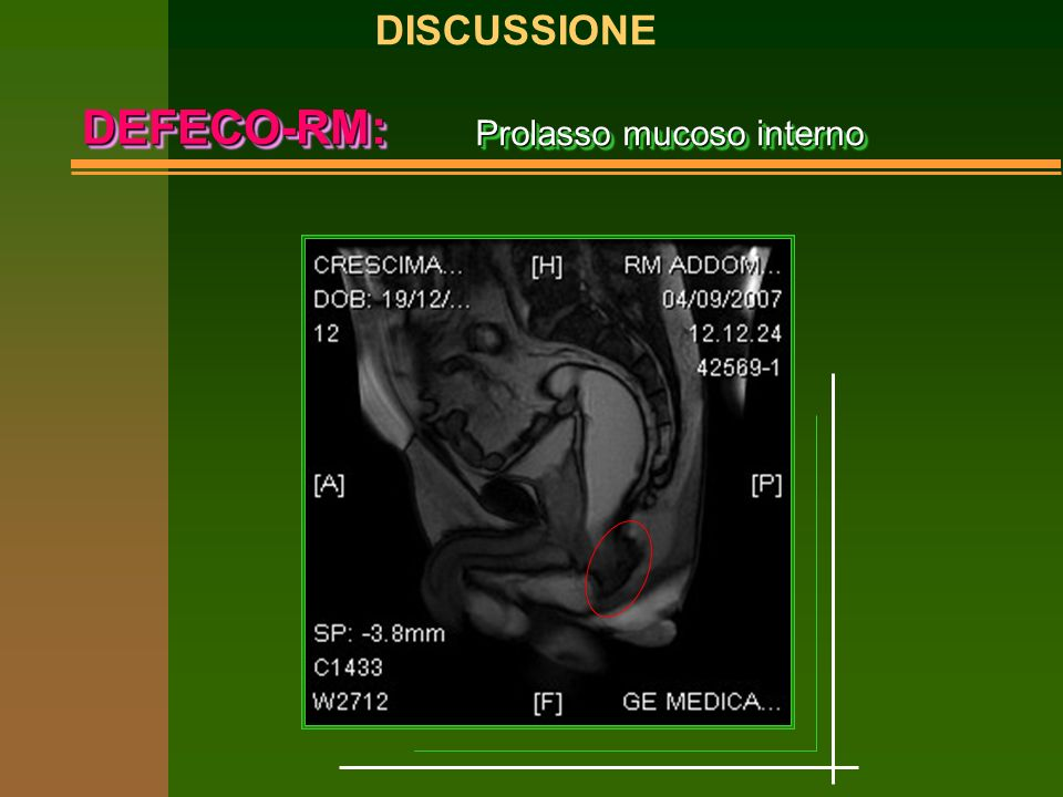 DISCUSSIONE DEFECO-RM: Prolasso mucoso interno