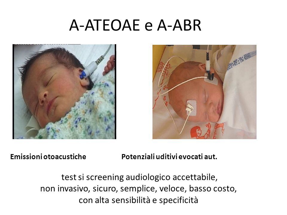A-ATEOAE e A-ABR test si screening audiologico accettabile,