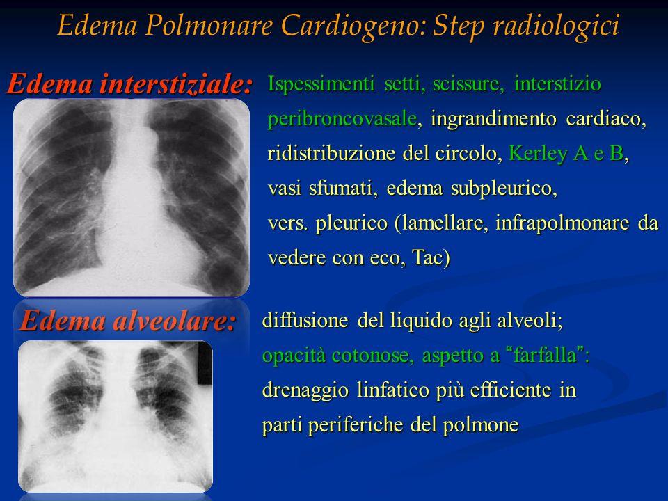 Edema Polmonare Cardiogeno: Step radiologici
