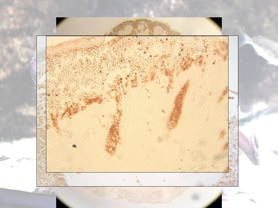 Neurogenesi adulta