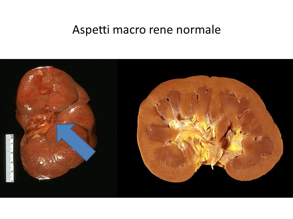 Aspetti macro rene normale