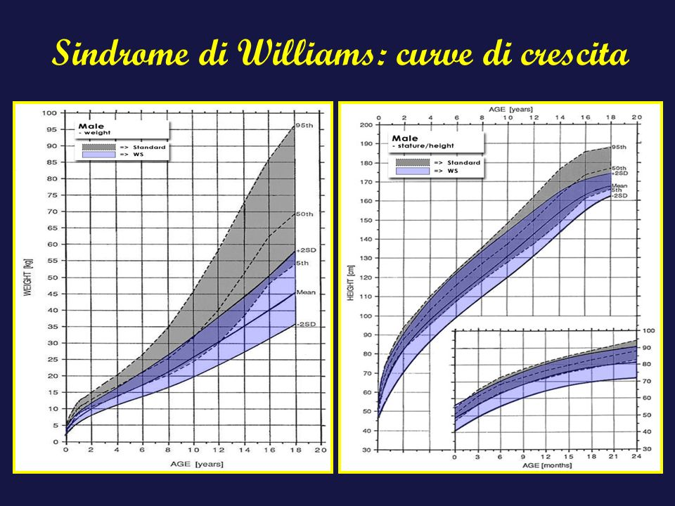 Sindrome di Williams: curve di crescita