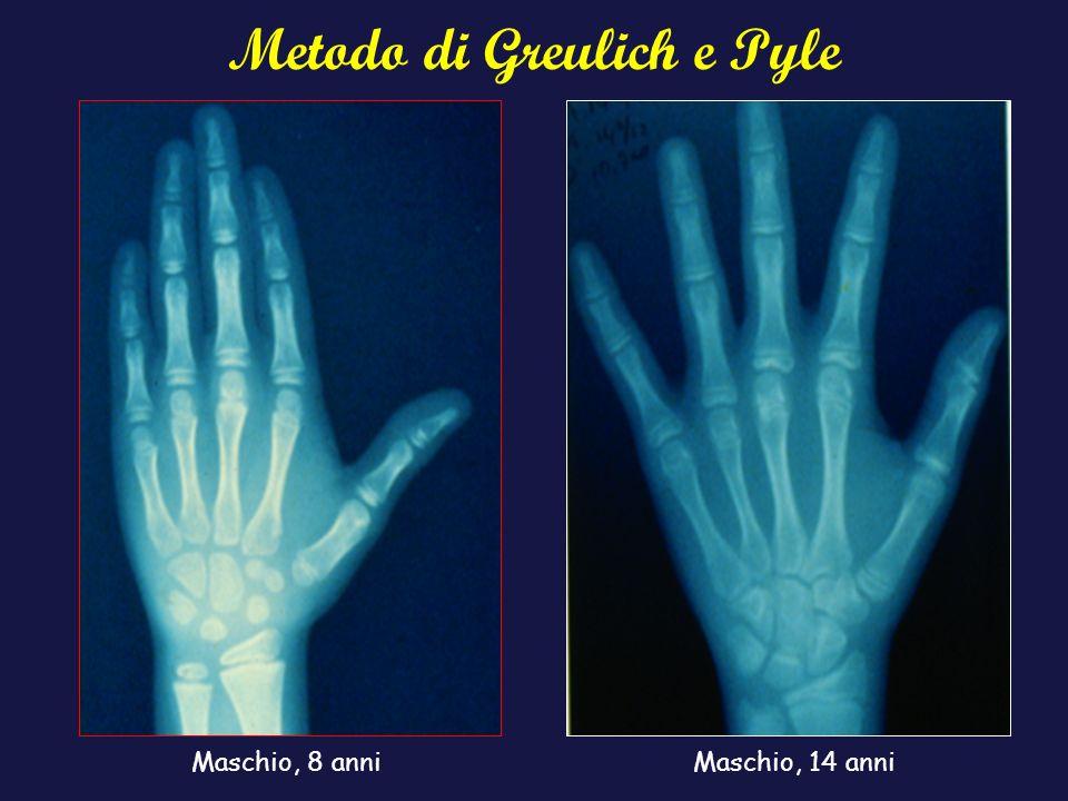 Metodo di Greulich e Pyle