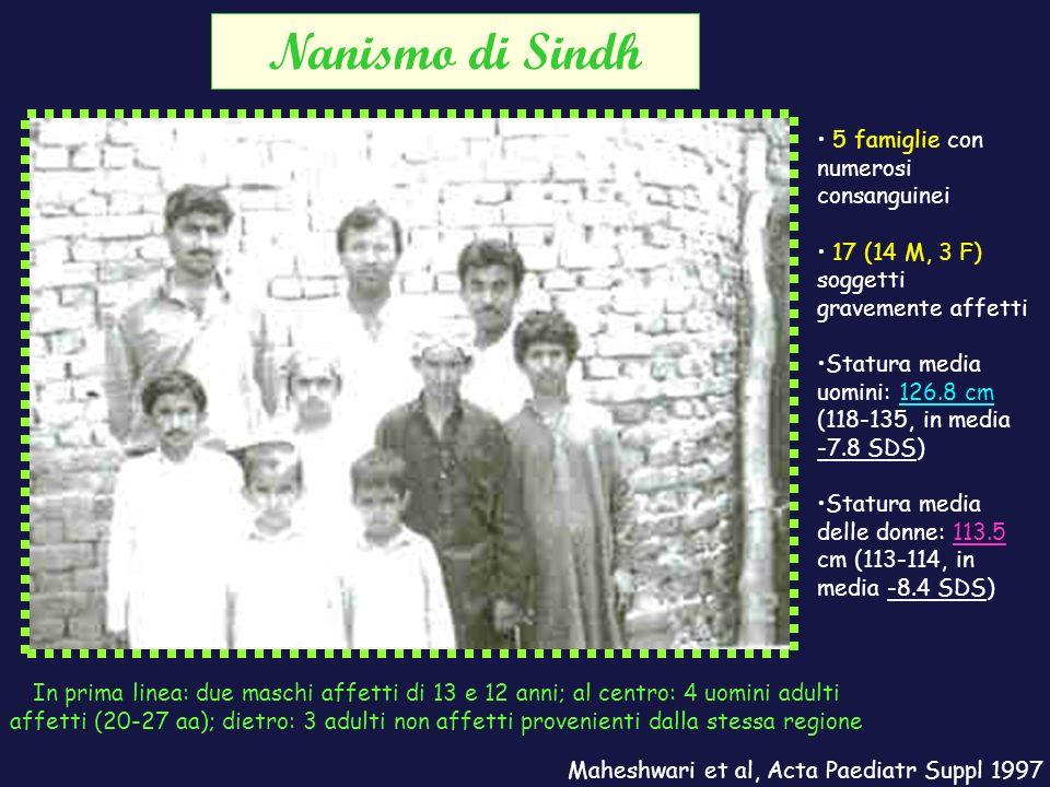 Nanismo di Sindh 5 famiglie con numerosi consanguinei