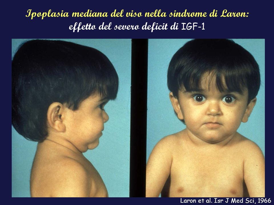 Ipoplasia mediana del viso nella sindrome di Laron: