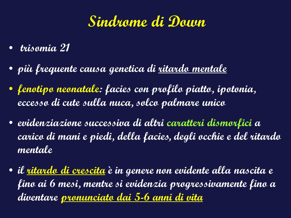 Sindrome di Down trisomia 21