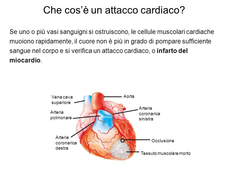 Che cos'è un attacco cardiaco